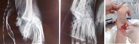 Fracture Luxation retrolunaire du carpe